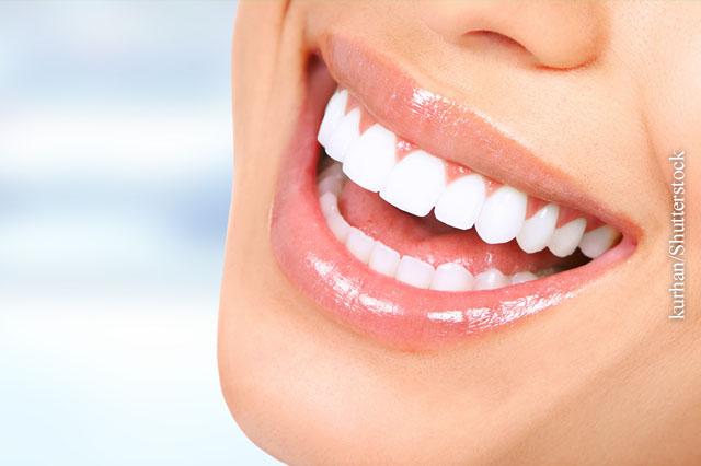 Parodontitis vorbeugen