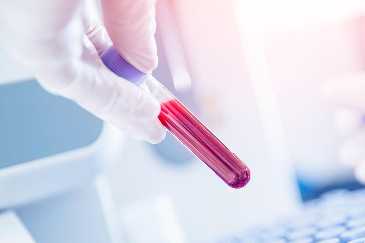 Alzheimer im Blut erkennen?