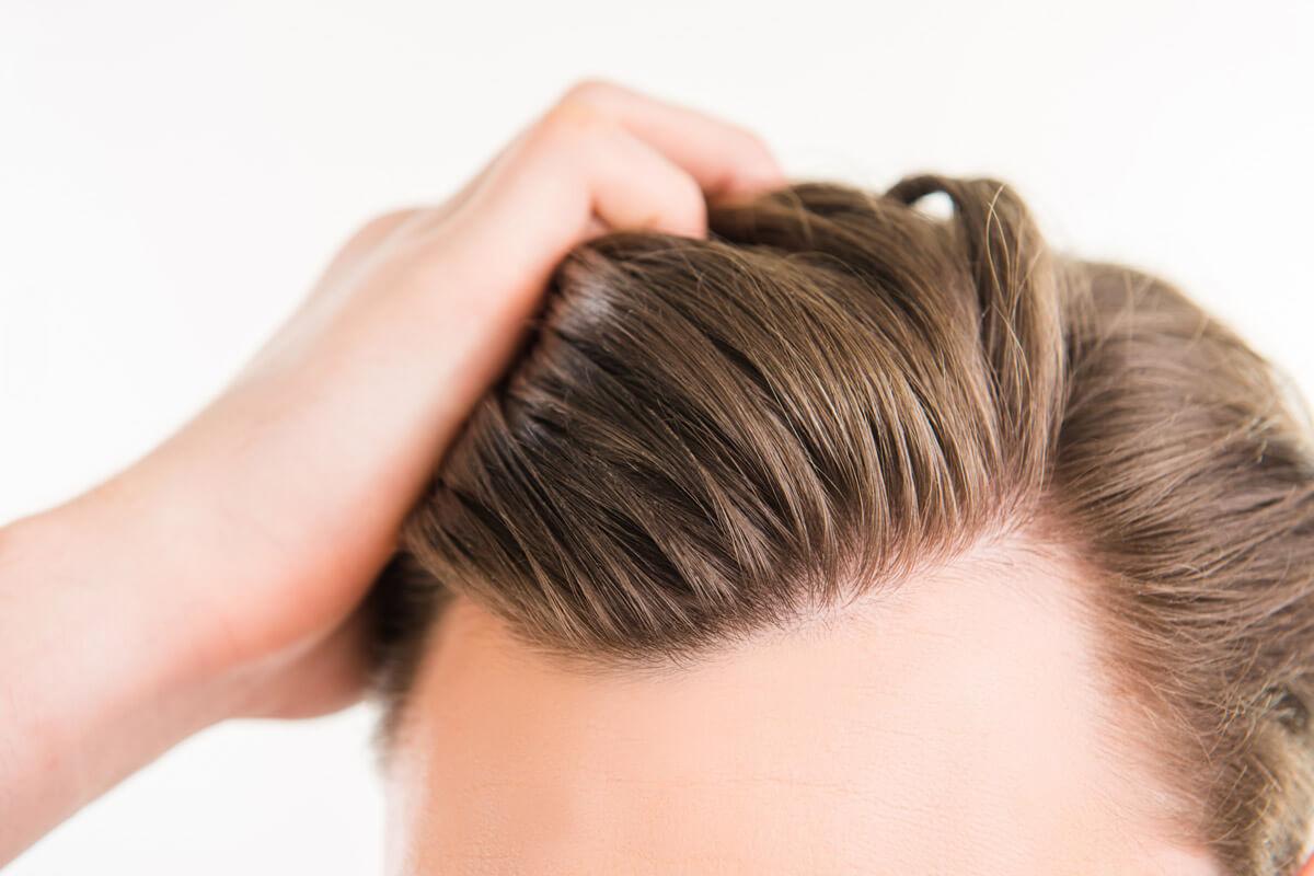 Frisuren haarausfall hinterkopf