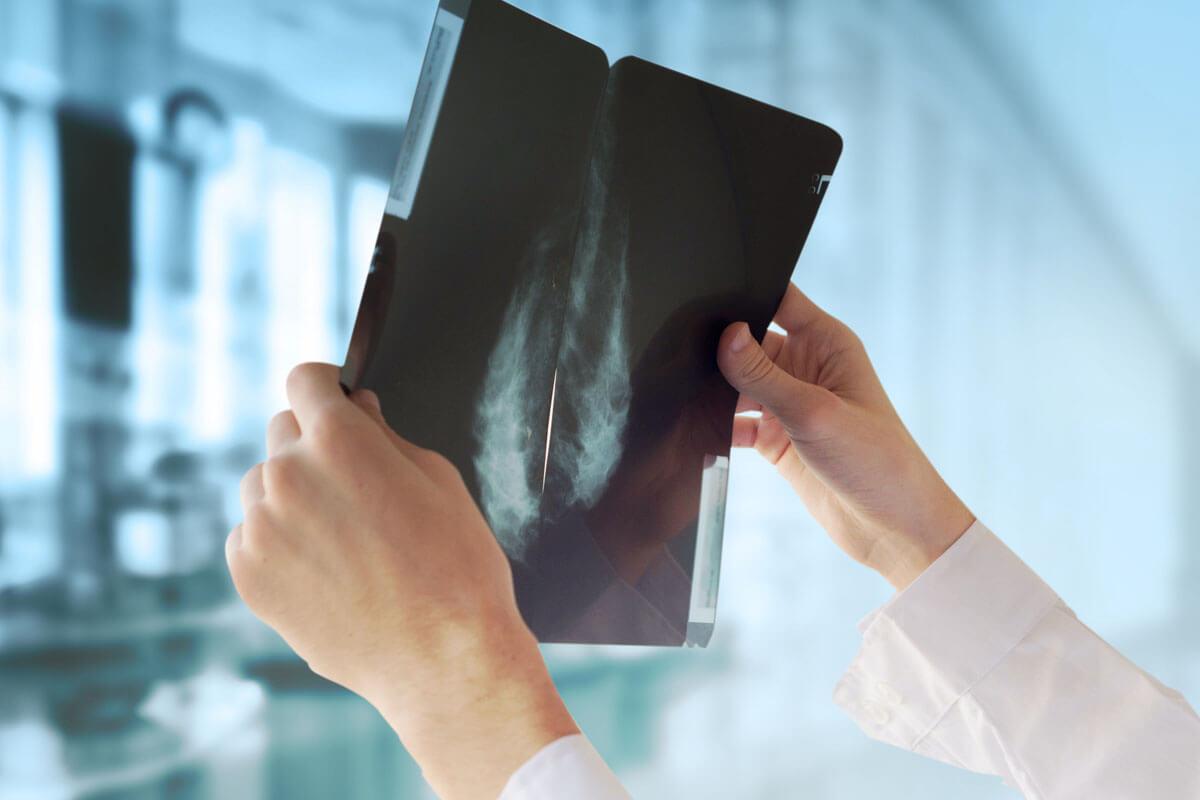 Kein Brustkrebs-Screening auslassen!