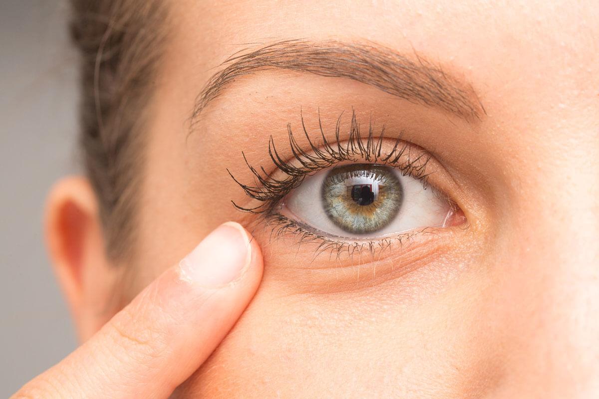 Augenringe und ihre Behandlung