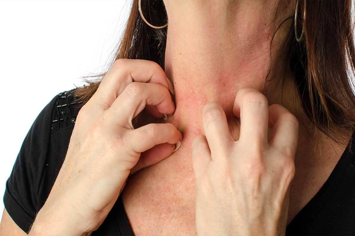 latex allergie was zu vermeiden ist