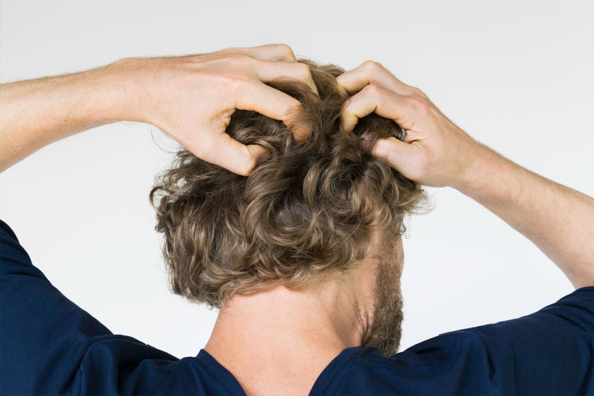 Kopfhautveranderungen