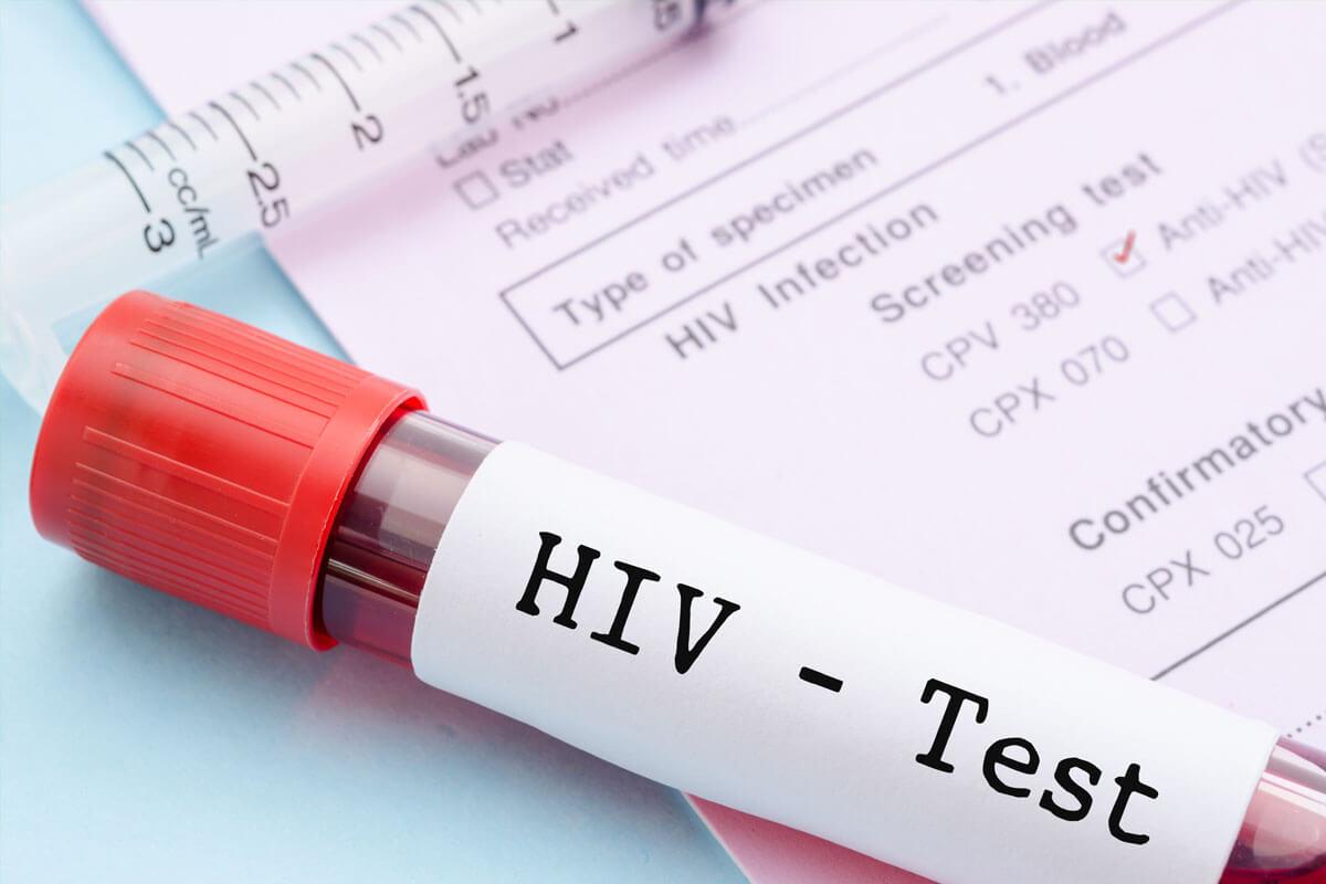 Bild Wann zum HIV-Test?