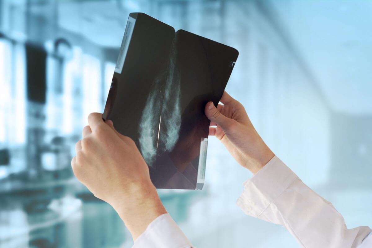 Wer erkennt Brustkrebs besser?