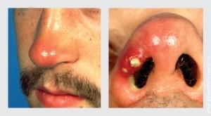 Nasenfurunkel