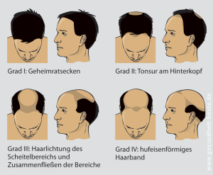 Haarausfall, androgener und diffuser