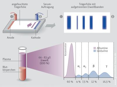 Eiweißelektrophorese (Elektrophorese)